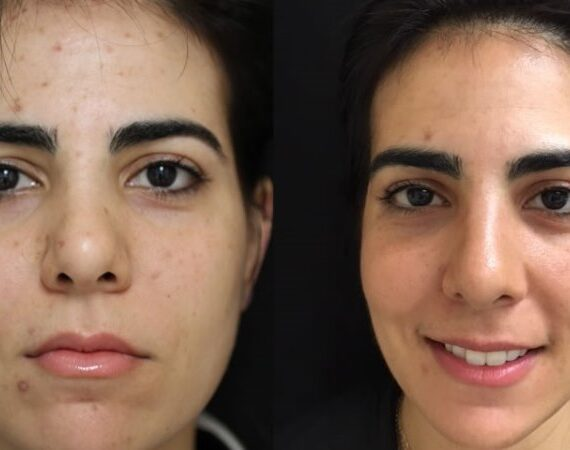 Acne Scar Removal – New Age Methods For Clear Skin