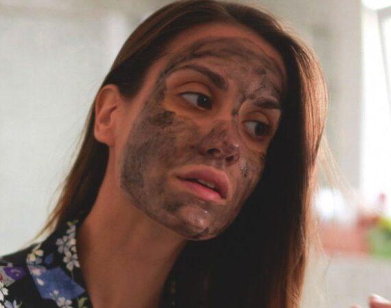 Blackhead Acne Treatment – Ways To Get Rid of Blackheads At Home