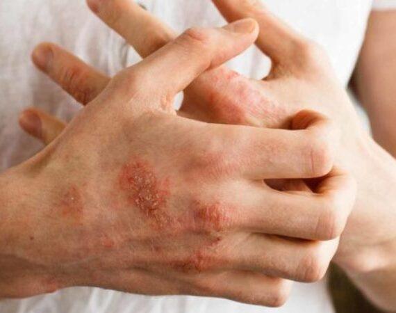Dead Sea Salt Eczema – Natural Home Treatment and Remedy For Eczema