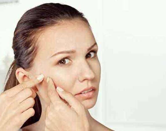 Homeopathic Acne Treatment – Can You Eradicate Acne With It?