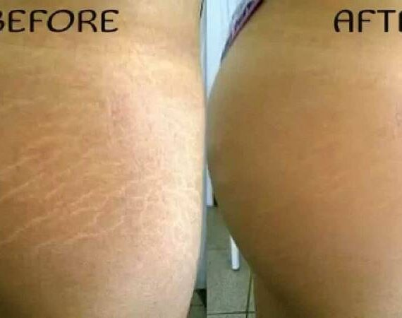 Do Stretch Marks Ever Really Disappear?