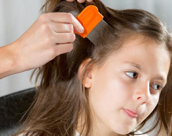 Useful Curing Methods For Lice And Nits